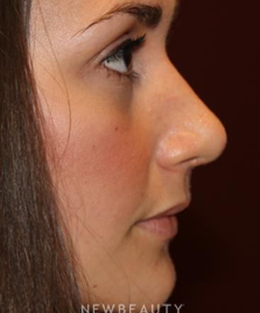 dr-zachary-filip-rhinoplasty-b