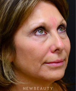dr-mokhtar-asaadi-injectables-fillers-b