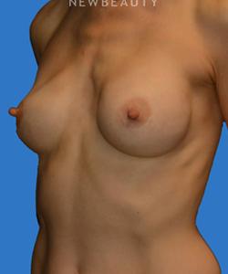 dr-william-franckle-breast-augmentation-b