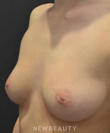 dr-aviva-preminger-breast-implants-b