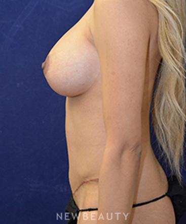 dr-cynthia-m-poulos-breast-augmentation-tummy-tuck-b