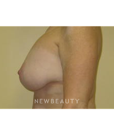 dr-beth-collins-breast-lift-b