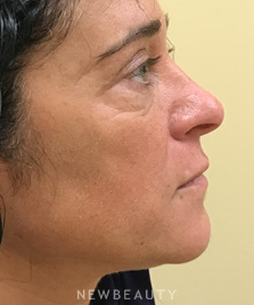 dr-beth-collins-lower-blepharoplasty-b