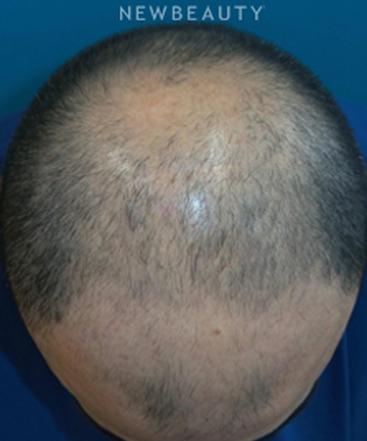 dr-adam-hamawy-hair-loss-treatment-b
