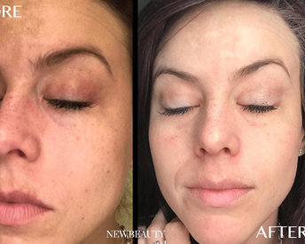 The 3 Products That Completely Faded One Woman's Severe Hyperpigmentation