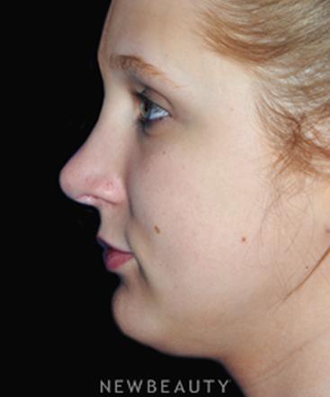 dr-yadro-ducic-rhinoplasty-chin-implant-b