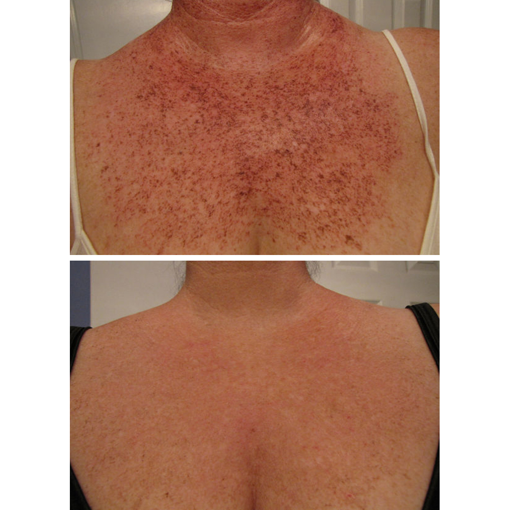 5 Ways to Treat Sunspots on Your Chest - Pigmentation ...