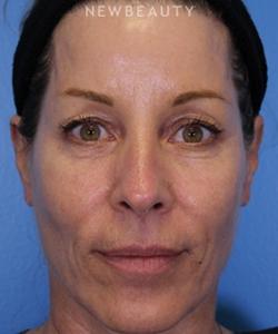 dr-ava-shamban-full-facial-rejuvenation-b