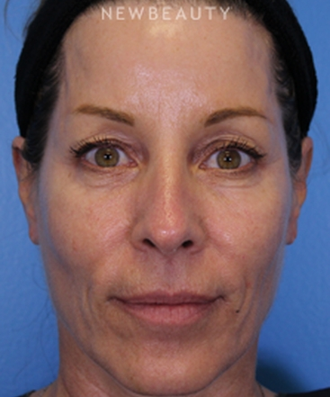 dr-ava-shamban-full-facial-rejuvenation-b