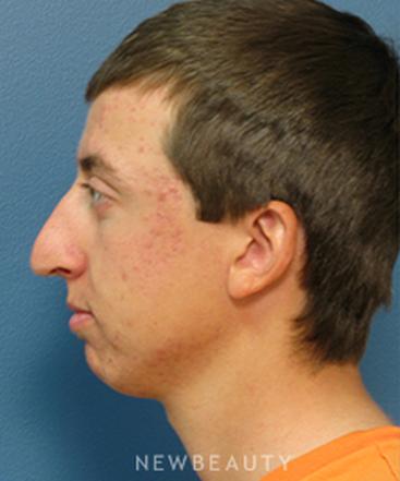 dr-adam-stein-rhinoplasty-b
