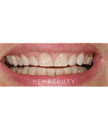 dr-ronald-goldstein-crowns-gum-countouring-veneers-b