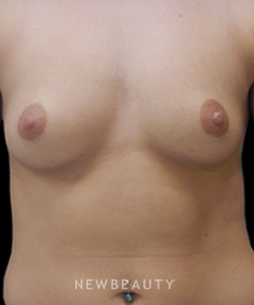 dr-matthew-endara-breast-augmentation-b