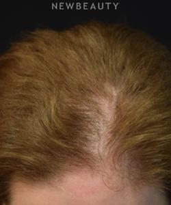 dr-jeffrey-wise-hair-loss-treatment-b