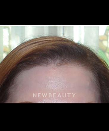 dr-ann-c-zedlitz-hair-restoration-b