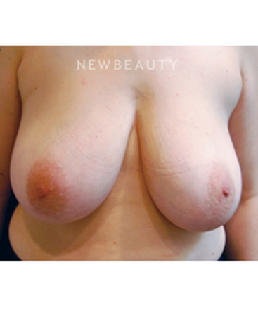 dr-roman-rayham-breast-reduction-b