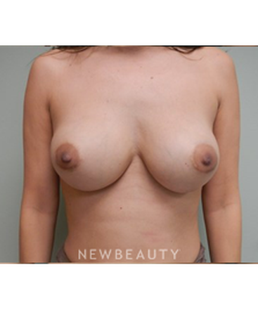 dr-alan-chen-breast-augmentation-b