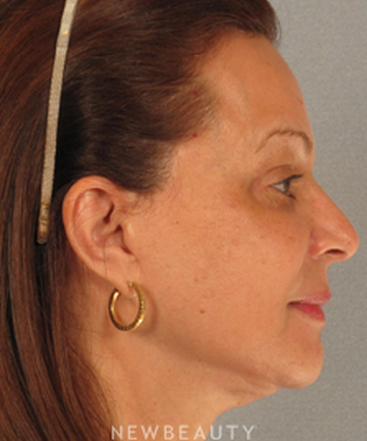 dr-henry-mentz-eye-lift-facelift-necklift-b