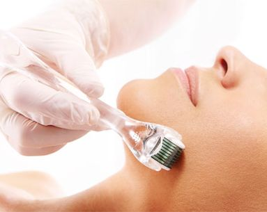 The Truth About Microneedling