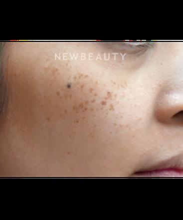 dr-jody-levine-laser-skin-resurfacing-b