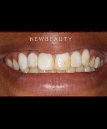 dr-irina-kessler-smile-makeover-b