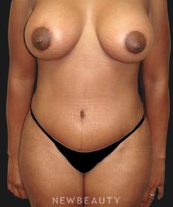 dr-sanjay-grover-mommy-makeover-b