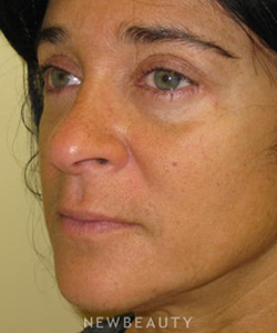 dr-beth-collins-lower-blepharoplasty-b