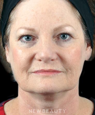dr-bradley-bengtson-facial-rejuvenation-b