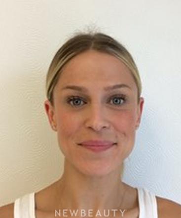 dr-quenby-erickson-botox-b