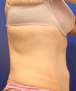 dr-jennifer-levine-coolsculpting-b