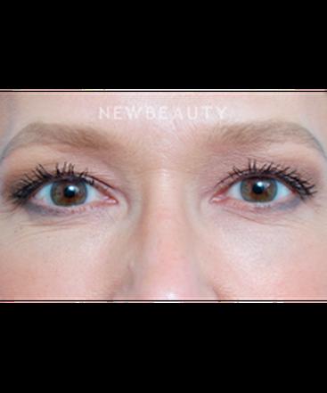dr-raymond-douglas-under-eye-filler-b