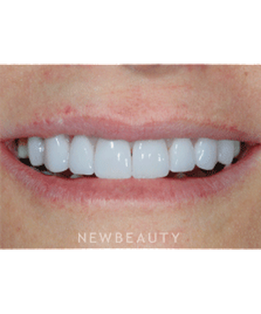 dr-guy-lewis-veneers-gum-lift-b