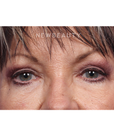 dr-kelly-bomer-upper-blepharoplasty-b