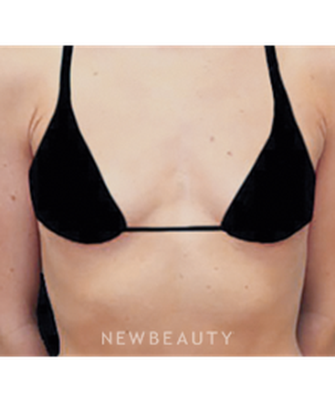 dr-daniel-maman-breast-augmentation-b