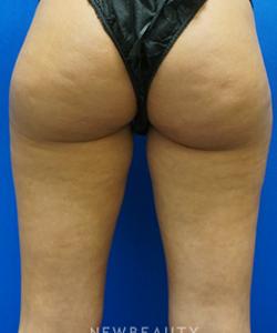 dr-niki-christopoulos-liposuction-b