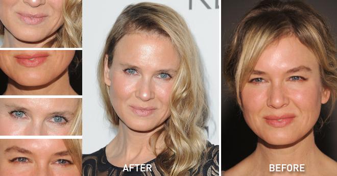 Renee Zellweger S Shocking New Look Anti Aging Face