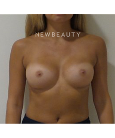 dr-michael-ciaravino-breast-augmentation-b