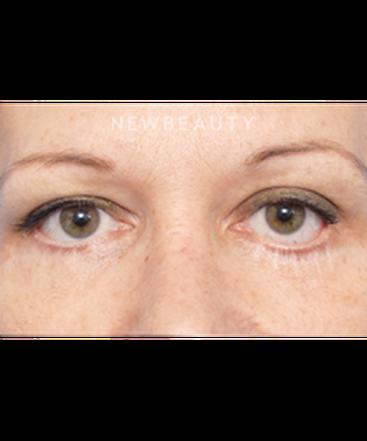dr-raymond-douglas-lower-blepharoplasty-b