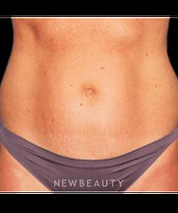 dr-bradley-bengtson-liposuction-b