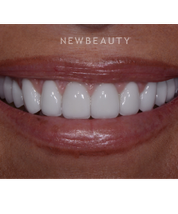 dr-guy-lewis-crowns-veneers-b