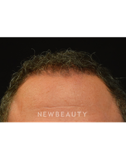 dr-jeffrey-b-wise-hair-transplant-b