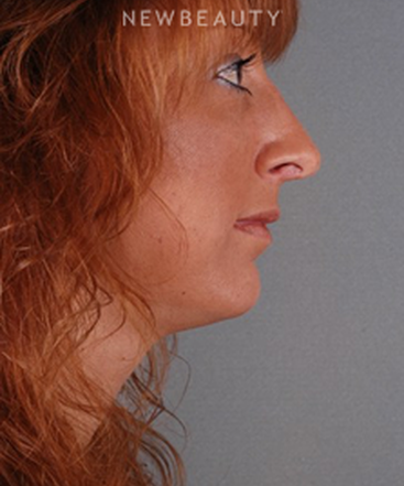 dr-benjamin-schlechter-rhinoplasty-b