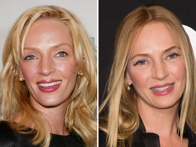 Did Uma Thurman Get Plastic Surgery Celebrity Makeup