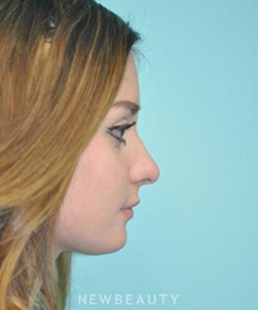 dr-shervin-naderi-rhinoplasty-b