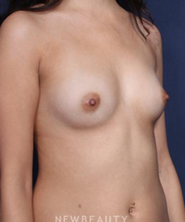 ljcsc-dr-saltz-breast-augmentation-b