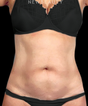 dr-henry-mentz-tummy-tuck-and-liposuction-b