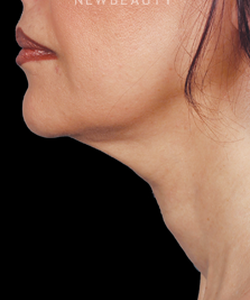 dr-ava-shamban-injectables-fillers-b