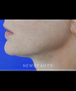 dr-vivian-bucay-skin-tightening-b