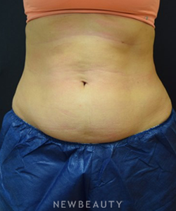 dr-jeffrey-b-wise-coolsculpting-b