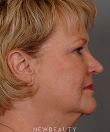 dr-henry-mentz-facelift-eye-lift-neck-lift-lasers-b