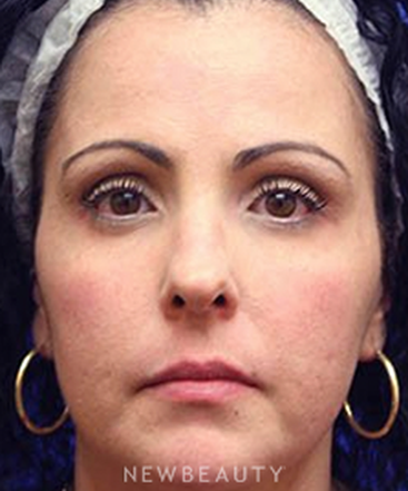 dr-irene-gladstein-full-face-injectable-makeover-b